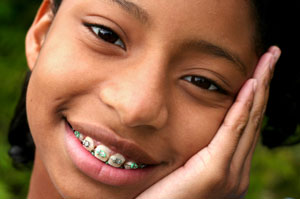 girl-with-braces-003